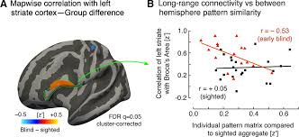 Define Cortical Blindness The Fine Scale Functional Correlation Of Striate Cortex In Sighted