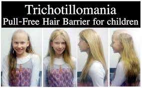 Thin Hair Extensions Before And After by Childhood Trichotillomania Treatment Before And After