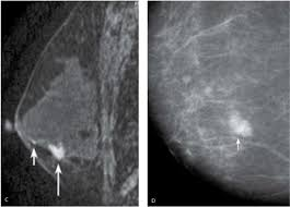 mri guided biopsy breast evaluation and imaging features of malignant breast masses
