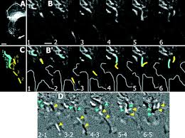 reorganization and movement of microtubules in axonal growth cones