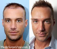 best hairtransplant in the world 2017 best hair transplant procedure male or female without propecia