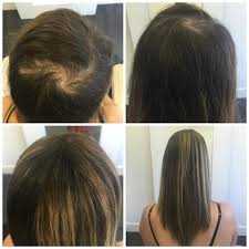 hair styles for trichotellamania female hair loss before after pacific hair extensions hair