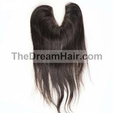 top closure v part top closure