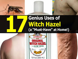 Home Genius by 17 Genius Uses Of Witch Hazel