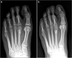 Avascular Necrosis Of The Metatarsal Head Freiberg U0027s Infraction A Modified Closing Wedge Osteotomy For An