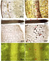 a transcriptomic network underlies microstructural and