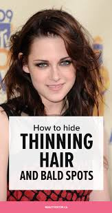 haircuts for crown bald spots how to hide thinning hair and bald spots beautyeditor