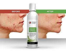 witch hazel for ingrown hair razor bump ingrown hair formula kerah lane health beauty