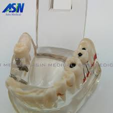 High Quality NEW arrival Dental implant Demonstration Bracket