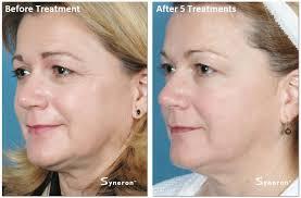 intense pulsed light review skin tightening special mystique medical spa