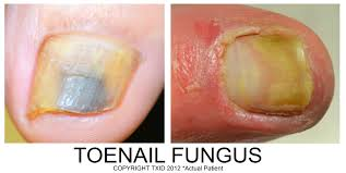toenail fungus home remedies for better looking nails top dermatologist in san antonio texas institute of dermatology
