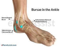 Ankle Ligament Tear Mri Ankle Joint Bursitis Causes Symptoms Treatment Conservative Pt
