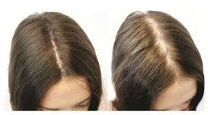 hair parting clive hair clinics aus hair loss treatment women female