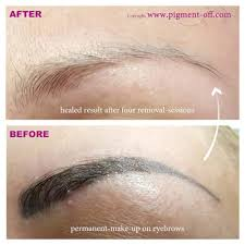microblading u0026 tattoo removal training deluxe brows