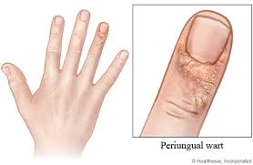How Do You Get Rid Of A Planters Wart by Periungual Warts Prevention And Treatment Remove Warts Fast