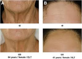light therapy for skin led light therapy for anti aging inflammatory skin issues