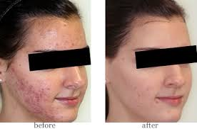 blue and red light therapy for acne nu you skin care revitalizing peels