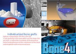 guided bone regeneration bone4u individualized grafts