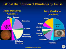Childhood Blindness Causes The Challenge Of Vision Loss The Need For Advocacy Ppt