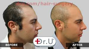 tyga hair transplant young aged hair transplant for student with tight budget by dr