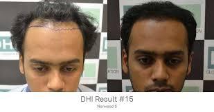 dhi hair transplant reviews dhi delhi hair loss clinic in new delhi whatclinic co uk