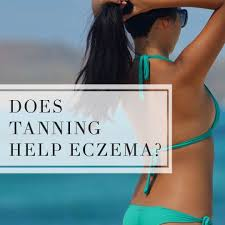 light therapy for eczema does tanning help eczema top eczema treatments