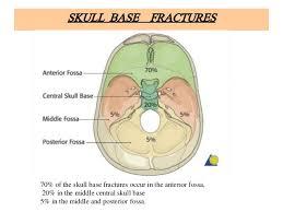 Base Of The Skull Anatomy Anatomy Of Skull Fractures
