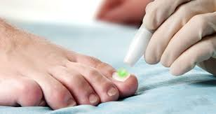 sportsmed podiatry fungal nail treatment