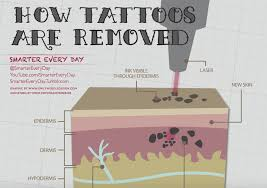 how do you remove a tattoo laser tattoo removal