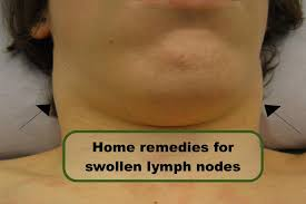 home remedies for swollen lymph nodes swollen lymph nodes in