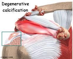 Anatomy Of Rotator Cuff Calcific Shoulder Tendonitis Houston Methodist