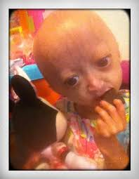 adalia rose whycantwebeforeveryoung