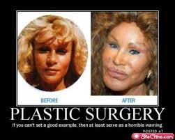 Plastic Surgery Meme - cosmetic surgery isn t worth it stop people please imgur