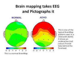 Brain Mapping Adhd Transition From Adolescence To Adulthood Ppt Video Online