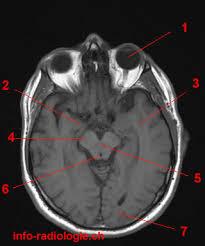 Axial Mri Brain Anatomy Axial Mri Of Brain Flashcards By Proprofs