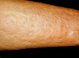 eosinophilic fasciitis is a rare disorder characterized by