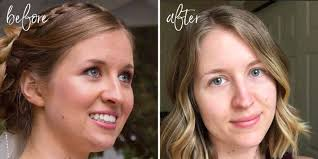 Face Mapping Pimples How I Cleared My Acne Naturally U2022 Organically Becca