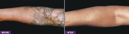 laser tattoo removal melbourne