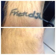tattoo removal inc new england news valley advocate voting laser removal info