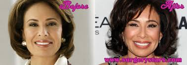 judge jeanine haircut jeanine pirro plastic surgery before after pics