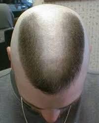 horseshoe haircut horseshoe flattop flattop pinterest haircuts flat top