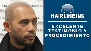 brooklyn hairline excelente testimonio y procedimiento de micropigmentación del