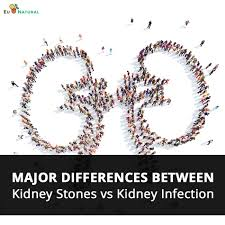 kidney stones vs kidney infection what are the major differences