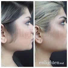 best laser hair removal dallas enlighten md a premier medical spa
