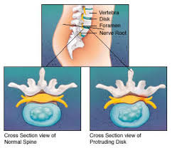 inverted table for herniated disc sciatica and the anatomy of back pain