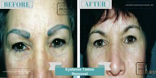 best tattoo removal in san diego skinny beach laser tattoo removal