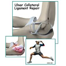 Collateral Ligaments Ankle Ulnar Collateral Ligament Reconstruction Central Orthopedic