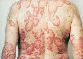 Tanning Bed Rash Pictures Dermatologic Signs Of Systemic Disease