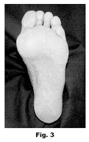 patent us20080082058 debriding callus foot tissue google patents
