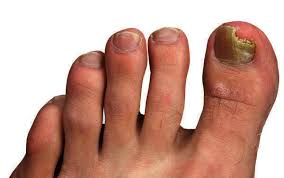 what is the best over the counter remedy for toenail fungus is it